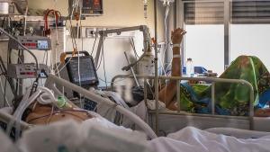 Otras 399 personas murieron y 24.086 fueron diagnosticadas con coronavirus en el país